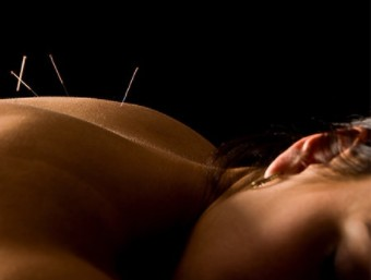 Treating Neurological Conditions With Neuro-Acupuncture