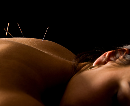 Acupuncture And Microcurrent Acupoint Stimulation