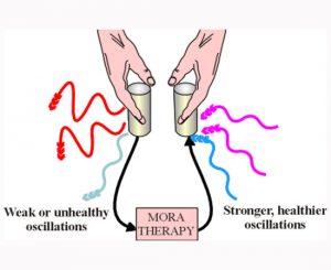 bioresonance-mora-therapy-at-new-health-medical-center